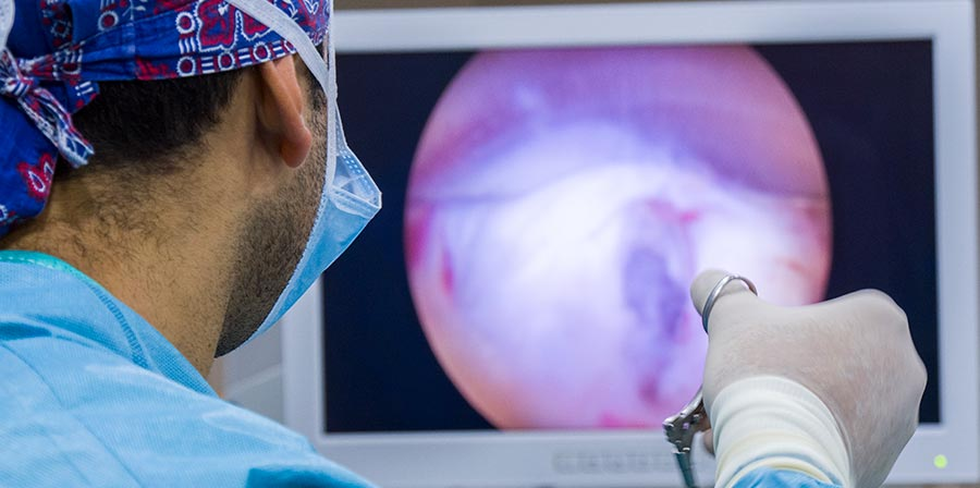 Tratamiento para la estenosis de conducto vertebral