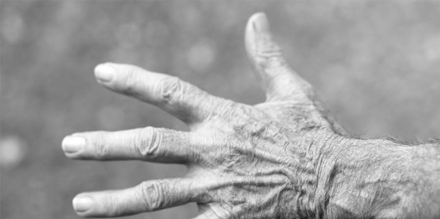 Diagnóstico y tratamientos para aliviar la artritis reumatoide