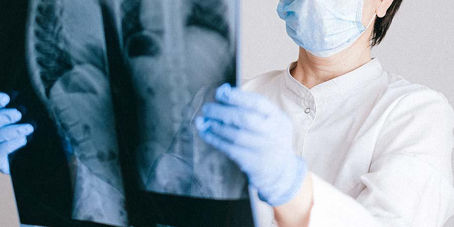 Cómo se diagnostica el cáncer de huesos