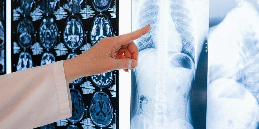 Qué es el cáncer de huesos y cuáles son sus causas